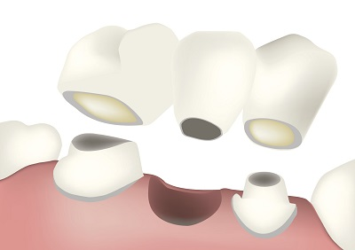Diagram of a dental bridge from dentist office in Severna Park, MD.