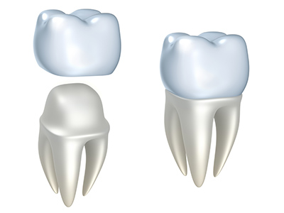 Dental Crowns by dentist in Severna Park, MD.