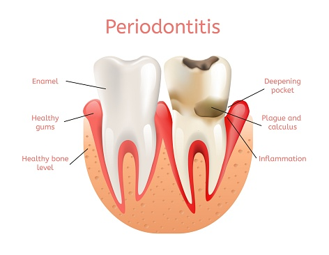 Periodontal disease treatment at Alan J. Binstock DDS Family and Cosmetic Dentistry